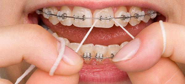 Как сделать брекеты в домашних условиях для своих зубов