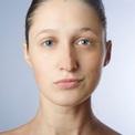 Ассиметрия лица - как исправить