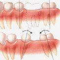 Почему зубы двигаются?