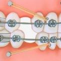 Ортодонтия и имплантация зубов